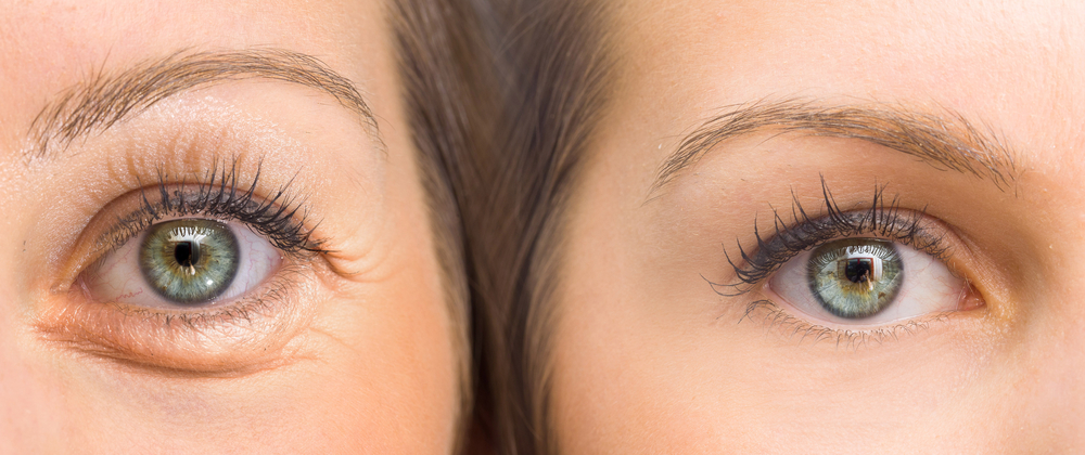 All About Eye Lifts Upper Lower Combo Bleph Blog Image