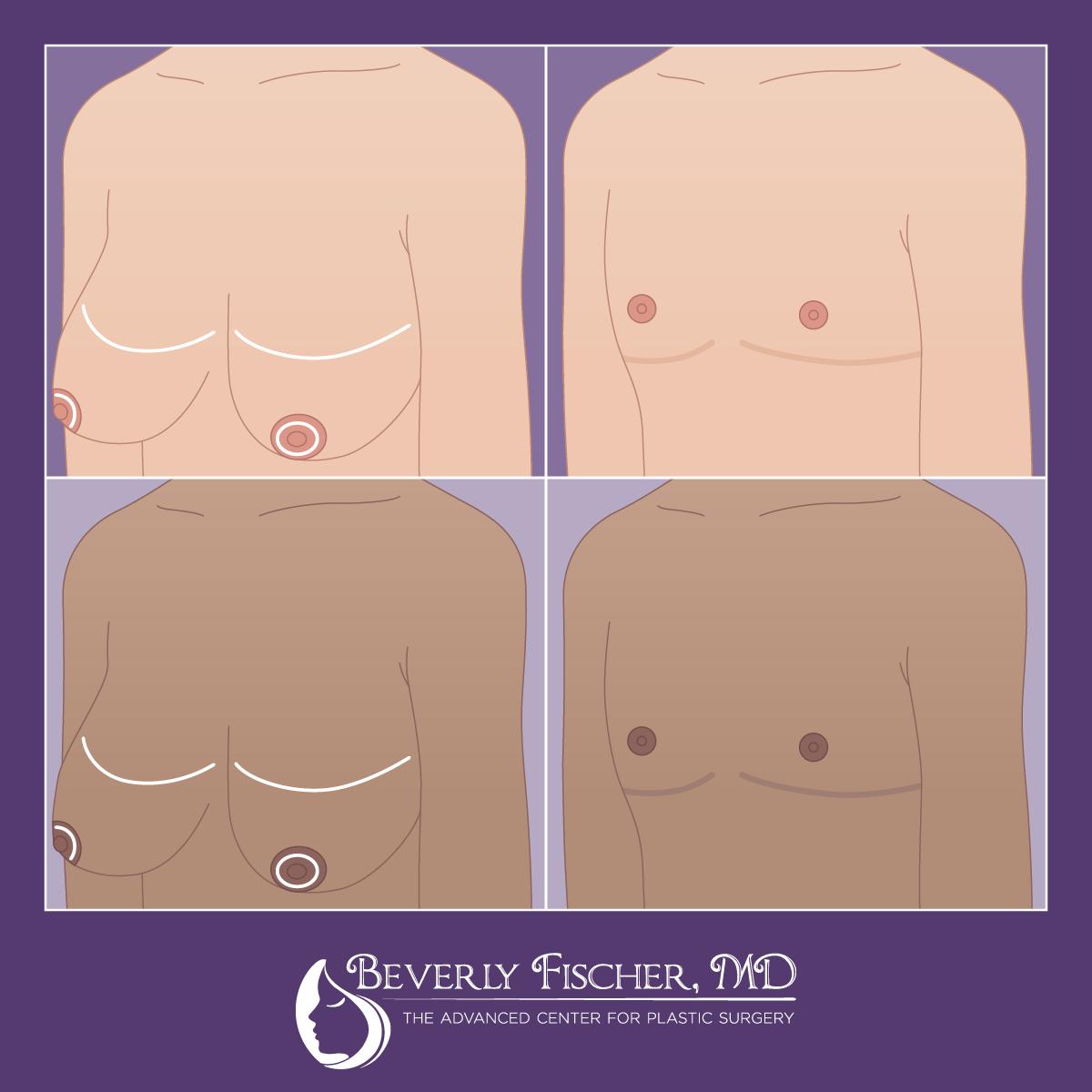 BF_FTM Surgery Graphics_2_1200px