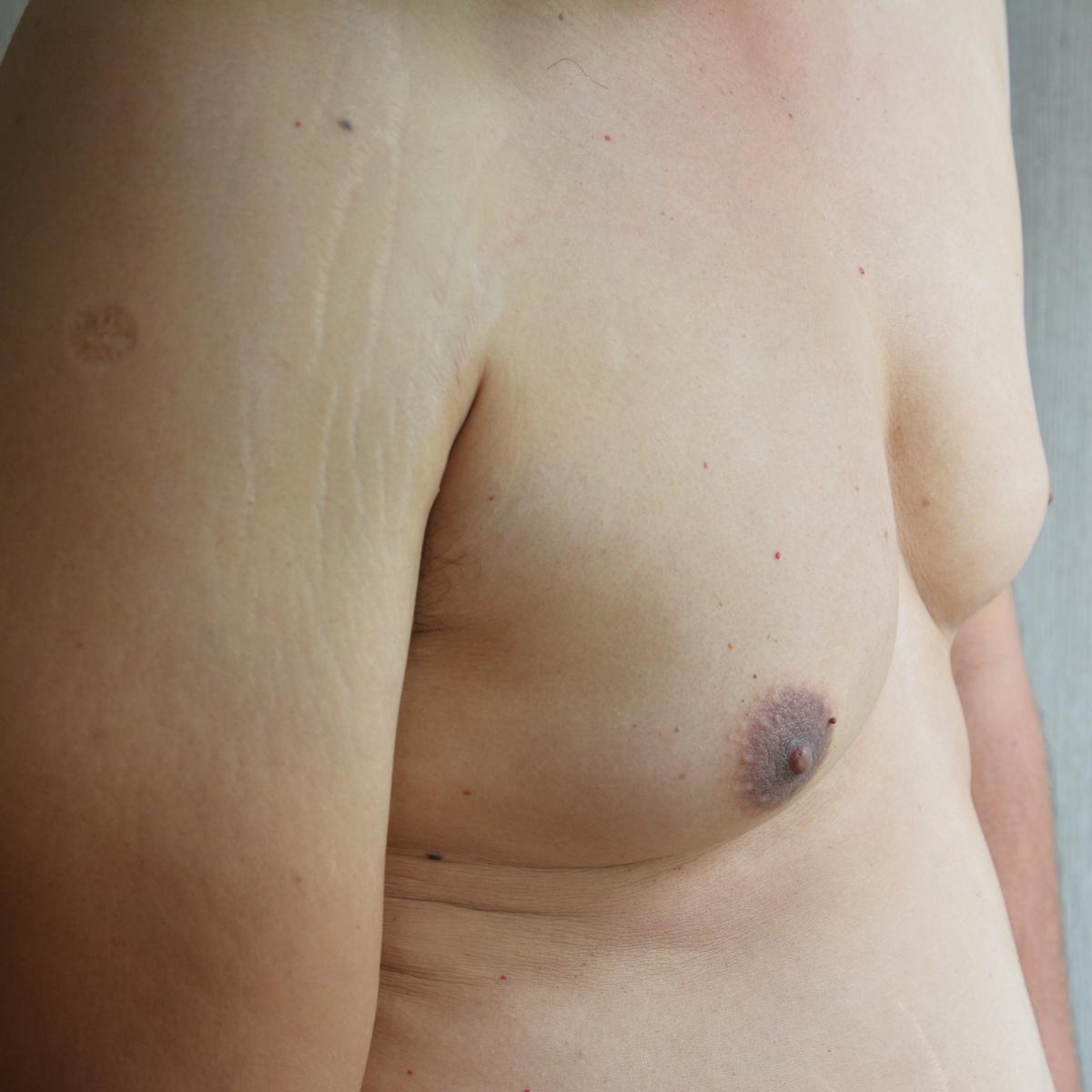Bev Gynecomastia Blog Image