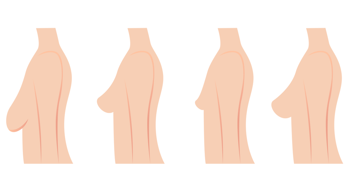 Breast Lift & Reshaping | Dr. Beverly Fischer - The Advanced Center for Plastic Surgery