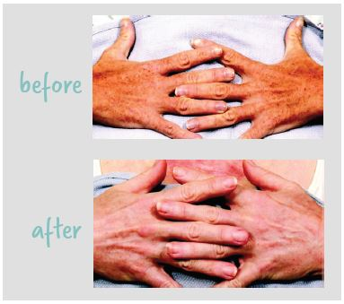 LASER RESURFACING FOR THE HANDS before and after image