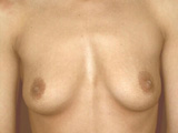 breast front before