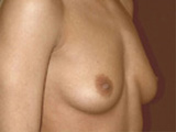 breast side before