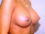 breast side after