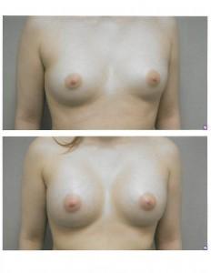 breastaug