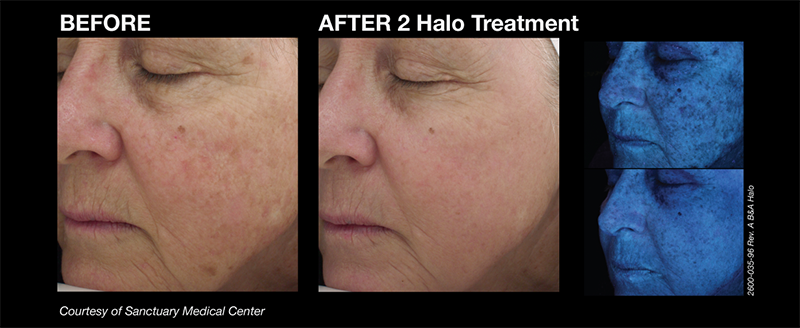 halo before and afters