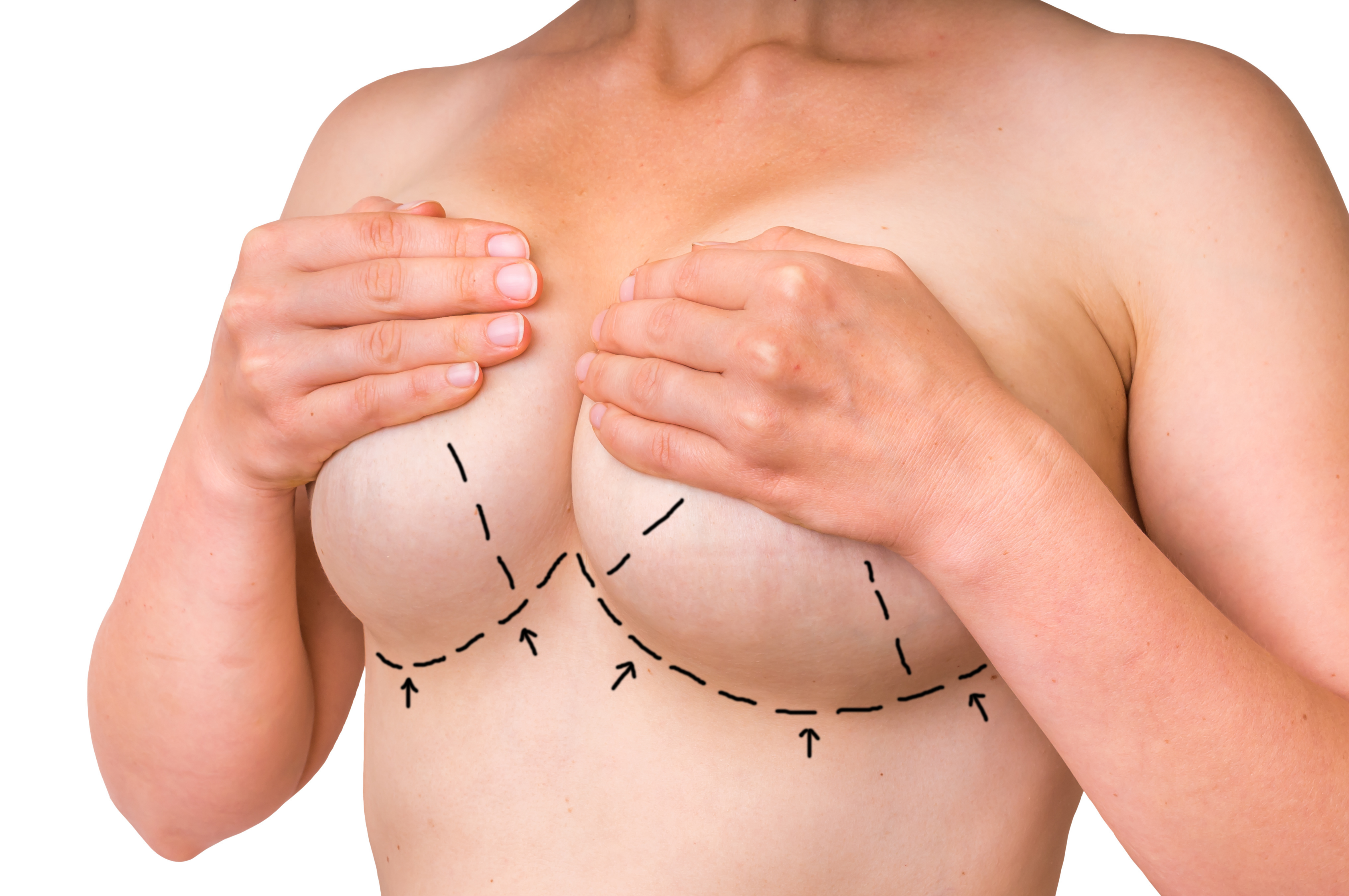 Can I Get a Breast Lift Without Implants Blog