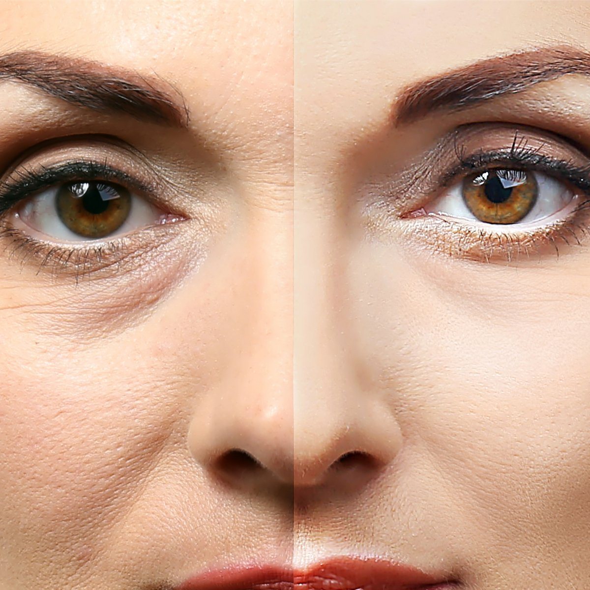 Eye Lift Safety Recovery