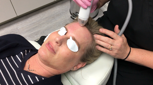 Dr_Beverly_Fischer_Vivace_Microneedling
