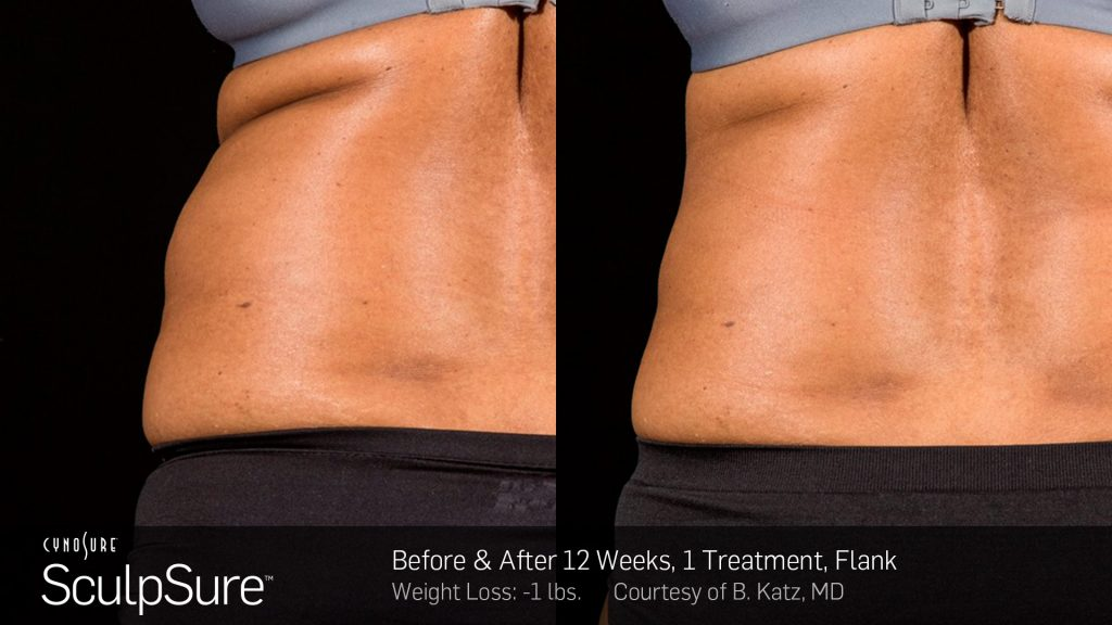 BA SculpSure B Katz Post 1Tx 12WKs