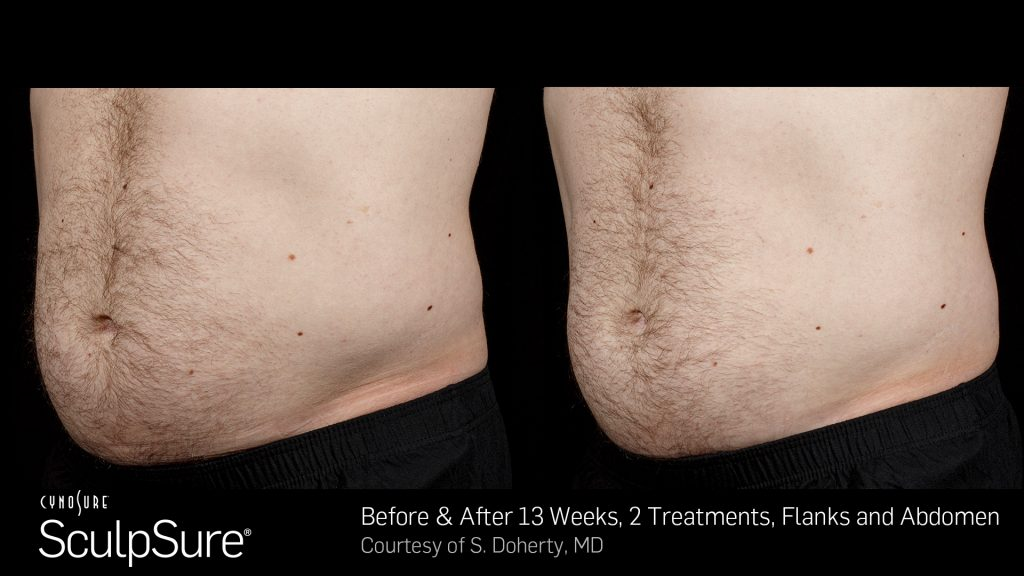 BA SculpSure S.Doherty Core 2tx 13wks