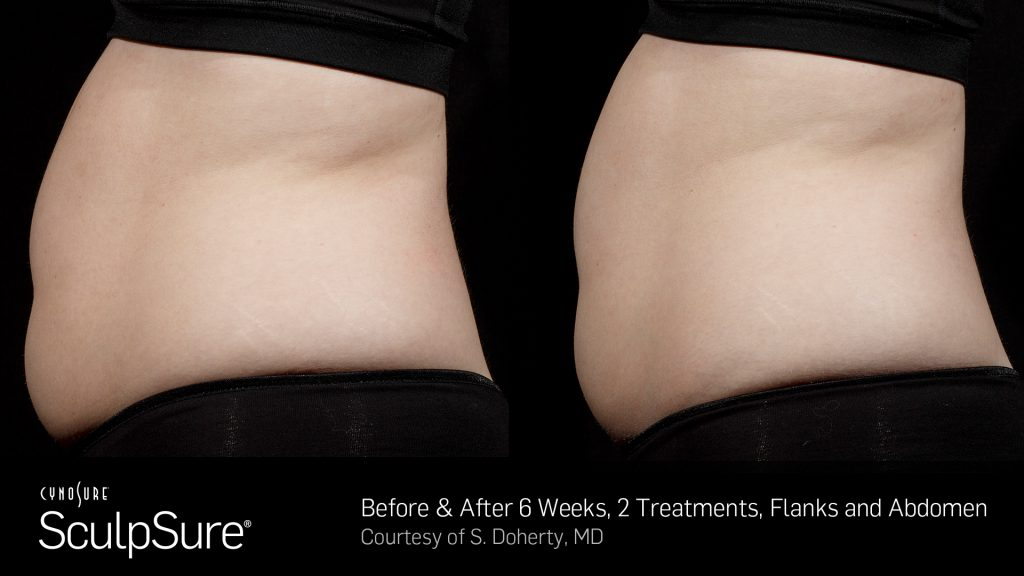 BA SculpSure S.Doherty Core 2tx 6wks