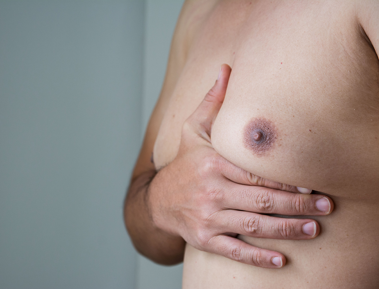 Surgical Breast Augmentation for Gynecomastia
